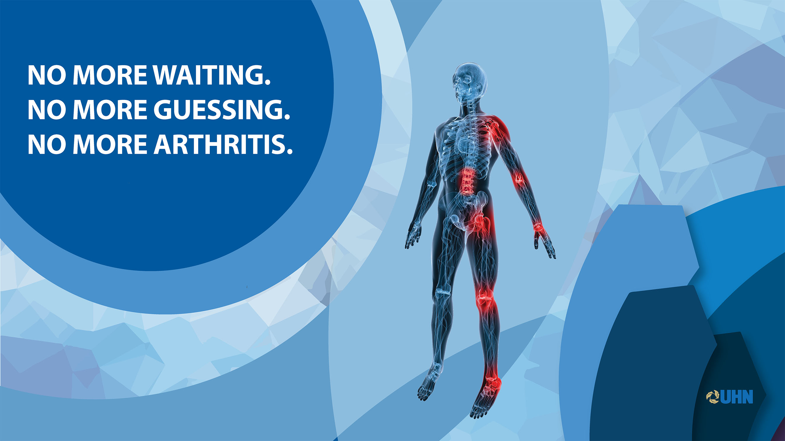 No more arthritis