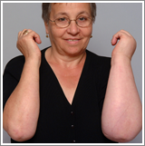 Woman showing forearms