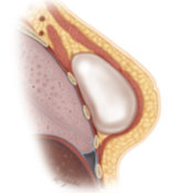 Permanent implant-based breast reconstruction